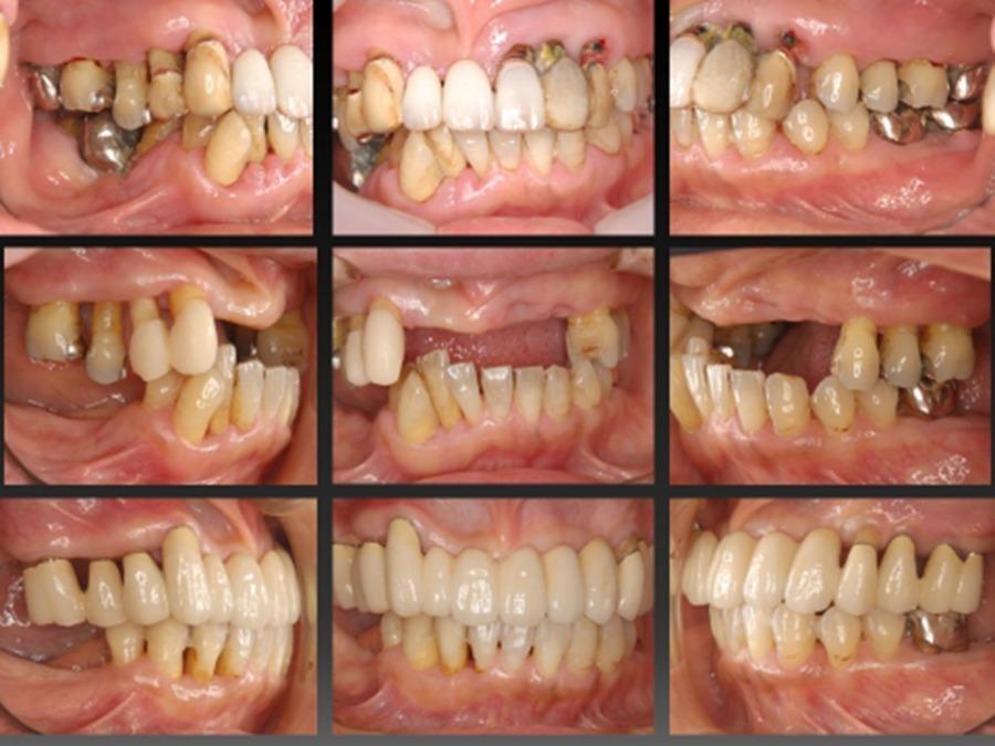 周 士 衛生 歯科 歯 認定 病