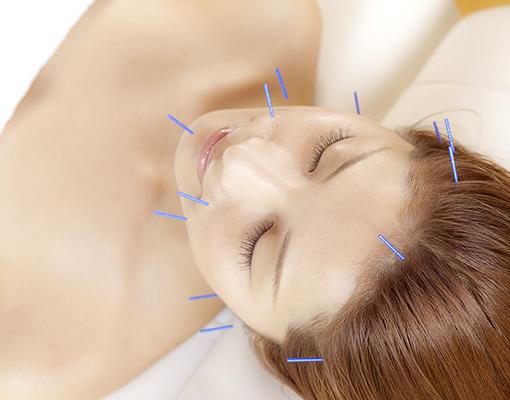 美容鍼サロン『Salon De  F』(サロン・ド・エフ)の画像