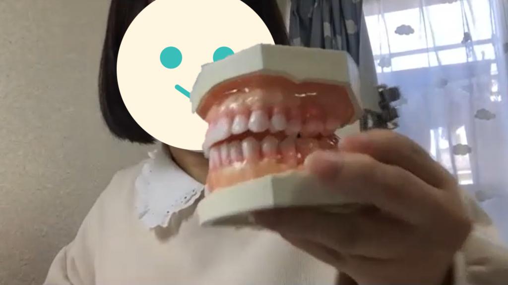 合格者体験記_歯科衛生士_顎模型